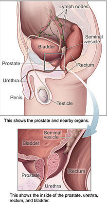 Prostate Cancer Treatment in Aundh,Pune