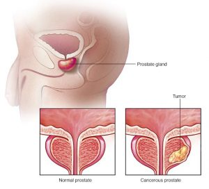 Prostate cancer treatment in Aundh