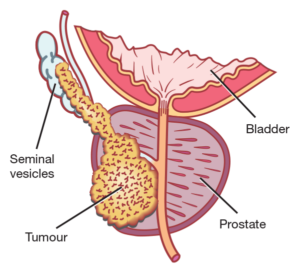 Localized prostate cancer_Dr Hiralal Chaudhari