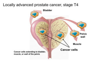 Locally advanced prostate cancer_Dr Hiralal Chaudhari